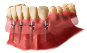 Implantate von einfachen Stifteinsätzen können nur dann eingebracht werden, wenn im Vorfeld kein Knochenabbau stattgefunden hat.