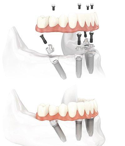 Durch die angewinkelten Implantate halten die vier Schrauben fest im Kieferknochen, selbst wenn dieser zurückgegangen ist.