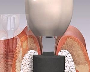Zahnimplantat Schmerzen: Obwohl das Implantat die Zähne auf besonders natürliche Weise ersetzt, kann es hin und wieder zu Komplikationen und Schmerzen nach der Operation kommen.