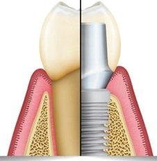 Zahnimplantate - Lassen Sie sich bei Dr. Seidel umfassend und professionell beraten.