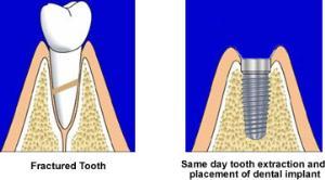 Das Einbringen eines Implantats direkt nach einer Zahnextraktion wird als Sofortimplantation bezeichnet.