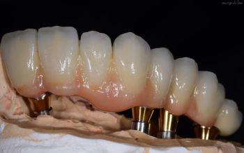 Material einer Implantatbrücke