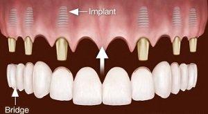 Die Preise für Zahnimplantate hängen nicht vom operativen Aufwand und der Spezialisierung des behandelnden Zahnarztes ab.