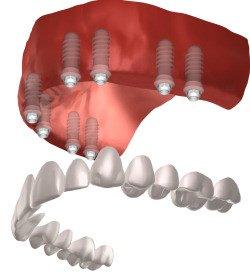Viele Patienten, besonders bei schlechtem Zahnzustand, wünschen sich eine komfortable und zügige Versorgung mit Zahnersatz. Dabei eignen sich Sofortimplantate bei weitem nicht für jeden, wie es in den Medien meist nicht dargestellt wird.