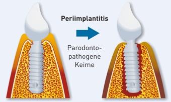 Periimplantitis (Implantatentzündung)