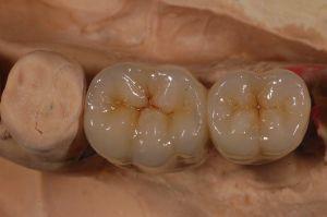Keramik Zahnersatz ist sehr viel härter als die natürliche Zahnsubstanz. Aus diesem Grund kann es hier zu Schäden an den gegenüberliegenden, natürlichen Zähnen kommen.