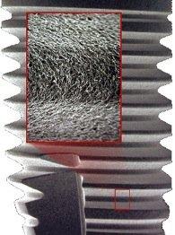 Implantatoberfläche