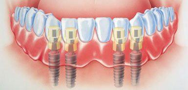 Prothese auf Implantaten
