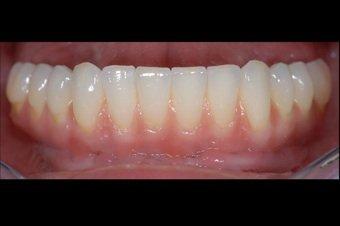 Implantatprothesen können entweder rein implantatgetragen sein oder aber in Kombination mit noch verhandenen gesunden Zähnen verankert.