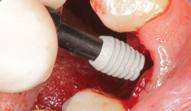 Insertion ultrakurzes Implantat