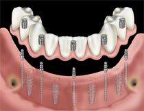 Selbst bei schwierigen Knochensituationen, wo Knochenverlust stattgefunden hat, können Schmal Implantate eingesetzt werden. Sie finden dabei auch in sehr engen Zahnlücken Platz.