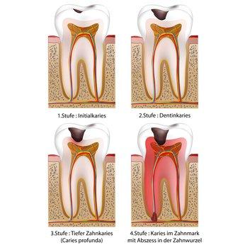 Die apikale Parodontitis wird meist durch tiefe Karies verursacht, der Zahnnerv stirbt ab und eine Entzündung entwickelt sich an der Spitze.