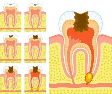 Zur Entstehung der Zahnfäule tragen genetische Faktoren, Zahnfehlstellungen und die Zusammensetzung der Nahrung maßgeblich bei.