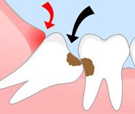 Verlagerte Weisheitszähne bedeuten ein großes Risiko für Karies- und Parodontoserkrankungen.