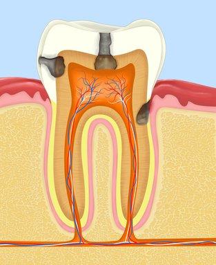 Zerstörte Zahnhartsubstanz durch Zahnfläulnis