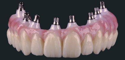 Als gebräuchlichste Brückenform gelten die sog. Endpfeilerbrücken. Hier wird das Brückenglied an den umliegenden Zahnkronen angebracht, was bei kleineren Zahnlücken in Frage kommt.