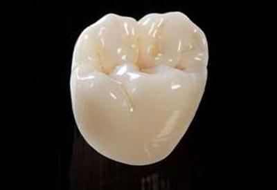 Eine Keramikkrone ist ein eine gute Lösung, wenn der Zahn zu stark beschädigt ist für eine Füllung.