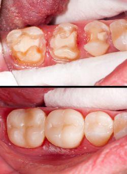 Zahnkrone bei Karies