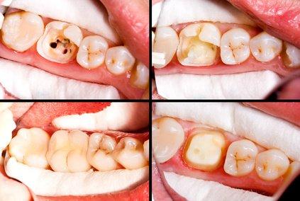 Ablauf der keramischen Zahnkronenversorgung