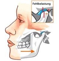 okklusale Fehlkontakte können zu Schmerzen im Nackenbereich oder einer Schädigung des Kiefergelenkes führen