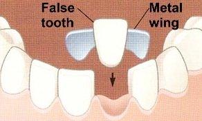 Das Provisorium Klebebrücke wird vom Zahnarzt direkt aus Kunststoff angefertigt.