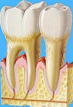 Die Reinigung der Zahnzwischenräume hilft auch dabei die Entwicklung von Parodontose zu verhindern.