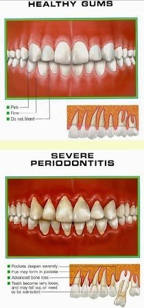 Bevor eine Behandlung beginnt, muss der Zahnarzt zunächst feststellen, welche Bereiche außerdem im Gebiss beschädigt sind.