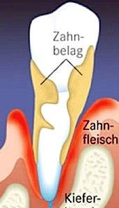 Knochenabbau durch Parodontose