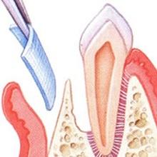 Zur Isolierung der Parodontits kann eine Membran als physikalische Barriere eingebracht werden.