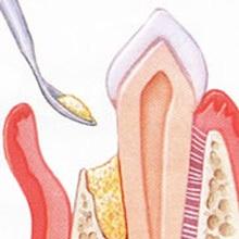 Auf den Parodontaleffekt wird zur Stabilisierung Knochenersatzmaterial aufgebracht.