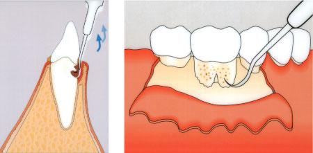Abbildung des Vorgangs einer Lappenoperation am Zahnfleisch