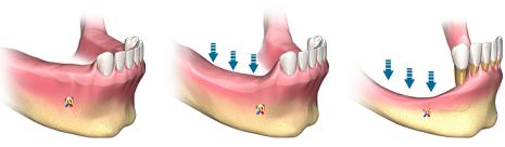Bei Osteoporose Patienten kann es zu Komplikationen bei der Implantation kommen, weshalb der Zahnarzt über die Erkrankung zu informieren ist.