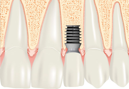 Kurzes Implantat