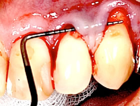 Lappenoperation bei Zahnfleischrückgang