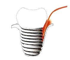 Der Laser kann bei Implantatschmerzen eine Behandlungsmöglichkeit sein.