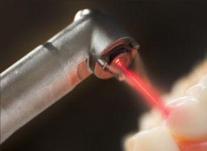 Der Laser kommt bei einer modernen Zahnbehandlung immer öfter zum Einsatz.