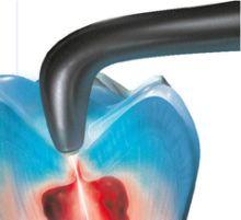 Lasereinsatz für schmerzfreies Bohren