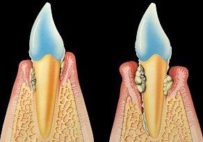 Lockere Zähne
