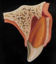 Luxation des Zahnes mit Kieferbruch