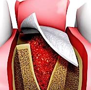 Membran beim Zahnarzt