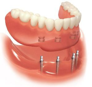 Insbesondere für ältere Patienten ist das Schmal Implantat eine sehr gute minimalinvasive Zahnersatzlösung, bei der eine bereits vorhandene Prothese fest im Kiefer verankert werden kann.