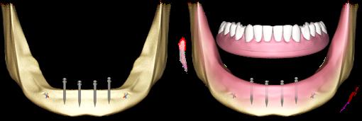Mini Implantate können auch bei klassischen Vollprothesen eingesetzt werden, um diesen mehr Halt zu geben.
