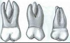 Typische Backenzähne im Oberkiefer haben drei Wurzeln, die ein bis drei Wurzelkanäle durchziehen können.