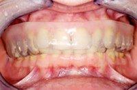 Ein Mundschutz ist ein effektives Mittel, um die Zähne vor harten Schlägen zu schützen.