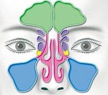 Durch den direkten Anschluss kann eine Entzündung der Nasenschleimhaut auch auf die Nebenhöhlen (Nasennebenhöhlenentzündung) übergehen, also bei jedem durch Viren oder Bakterien ausgelösten Schnupfen.