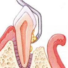 Offene Parodontaloperation