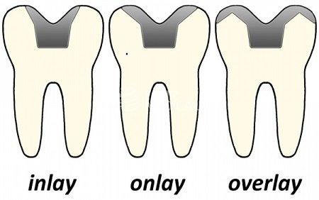 Unterschiede Inlay, Onlay und Overlay (Krone)