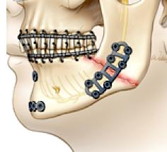 Operative Kieferbruchversorgung mit Miniplatten
