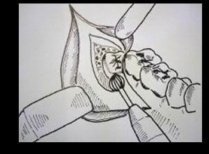 Kostem für eine Vollnarkose bei einer Weisheitszahnentfernung aller vier Zähne trägt der Patient selbst. Allerdings kann das eine sinnvolle Investition sein.