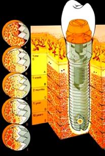 Unter Osseointegration versteht man den Verlauf der Implantateinheilung.